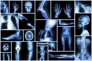 A collection of x-ray results showing various broken bones and fractures.