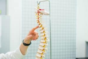 Doctor pointing to a common spinal cord injury on a plastic model