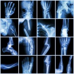 Collection of Broken Bones X-Rays
